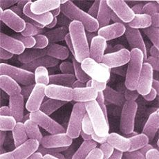 the Lactobacillus casei bacteria in yogurt