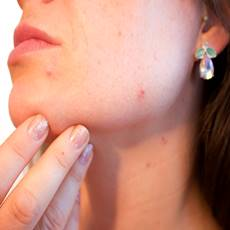 woman with pimples and acne on her face