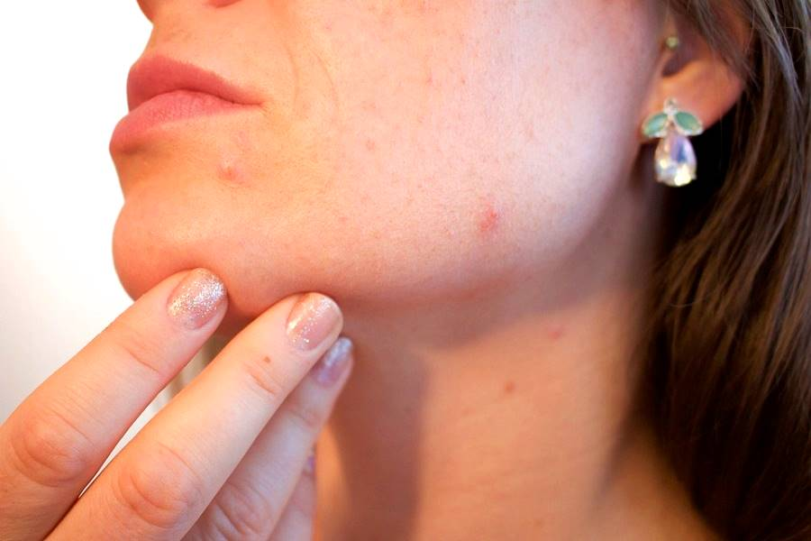 acne and pimples on woman's face